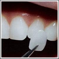 Cosmetic_dental_work_veneers_the_inside_scoop-brisbane_dentist